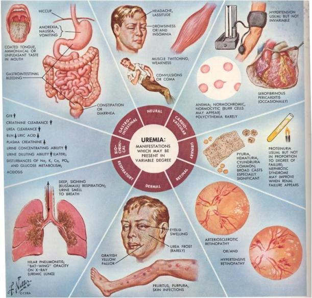 Kenapa Tubuh Kita Perlu Kalsium (Bukan untuk Tulang Saja)