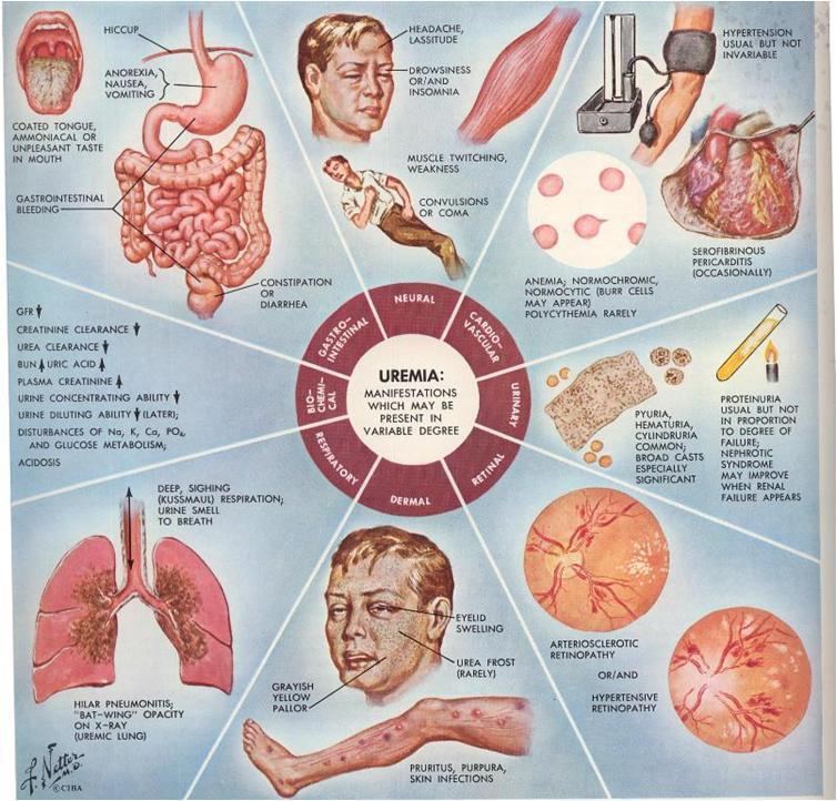 Diet bagi Penderita Leukemia