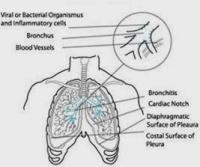 penyebab batuk tak kunjung sembuh